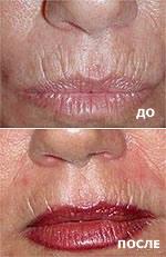 Морщины на верхней губе. До и после JetPeel